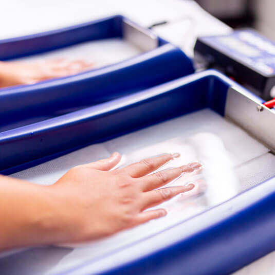 Iontophoresis-sweat-treatment-on-hands-in-trays-of-solution